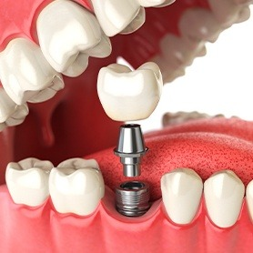 Animation of dental implant restoration process
