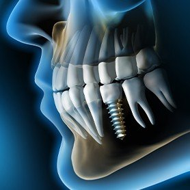 3D rendering of smile with implant supported replacement tooth