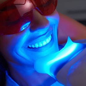 young woman undergoing in-office teeth whitening treatment